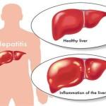 Viêm gan nào là bệnh nguy hiểm nhất?