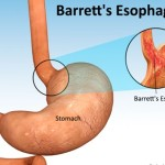Bệnh barrett thực quản