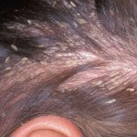 Cách trị á sừng da đầu