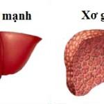 Các bệnh lý về gan thường gặp