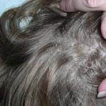 Những điều cần biết về bệnh nấm da đầu
