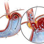 Bệnh trào ngược dạ dày – thực quản