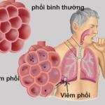 Bệnh viêm màng phổi – các biểu hiện thường gặp