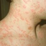 Bạn biết gì về bệnh mề đay?