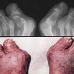 Biểu hiện của bệnh viêm khớp vảy nến