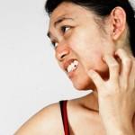Eczema – bệnh ngứa da không thể coi thường.