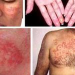 Lupus ban đỏ-căn bệnh nguy hiểm ít được biết đến