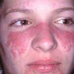 Lupus ban đỏ hệ thống có triệu chứng gì?