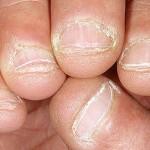 Nấm móng là bệnh gì?
