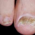 Triệu chứng bệnh nấm móng