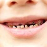 Bệnh sâu răng ở trẻ em – bạn nên chú ý