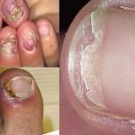 Biểu hiện của bệnh nấm móng
