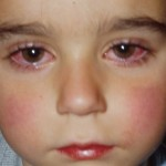 Các bệnh mắt ở trẻ em