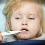 Cách chữa bệnh sởi cho trẻ em
