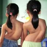 Chứng bệnh vẹo cột sống trẻ em