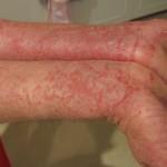 Điều trị bệnh viêm da dị ứng