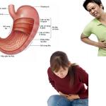 Những điều cần biết về bệnh hẹp môn vị