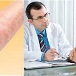 Tìm hiểu về bệnh viêm da dị ứng