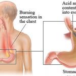Điều trị trào ngược dạ dày – thực quản