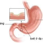 Chữa bệnh loét dạ dày