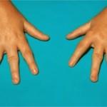 Viêm khớp dạng thấp ở trẻ em