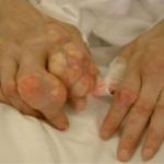 Cách điều trị bệnh gout