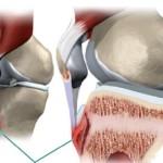Nguyên nhân phổ biến gây bệnh cơ xương khớp