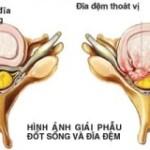 Thoát vị đĩa đệm và cách điều trị