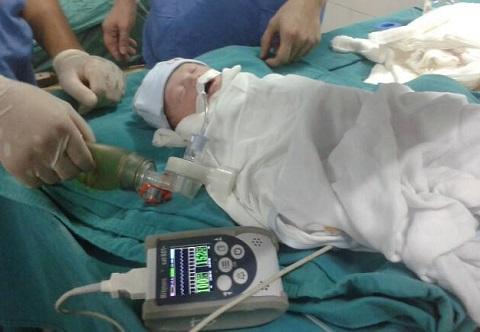 Các bác sĩ hai bệnh viện đã phối hợp mổ bắt con kịp thời cho thai phụ bị bỏng.