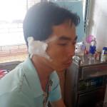 Phó Công an xã Nam Dong khi làm nhiệm vụ bị côn đồ chém lìa tai