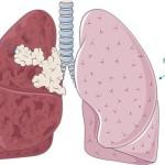 Bệnh ung thư gây tử vong nhiều nhất chính là ung thư phổi