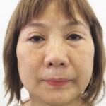 Phẫu thuật thẩm mỹ mắt hỏng và khắc phục