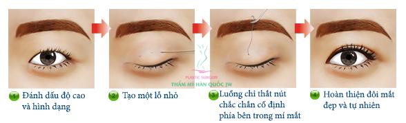 Bấm mí mắt có hại không