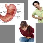 """Những thói quen """"phải bỏ"""" của người bệnh dạ dày"""