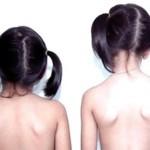 Phòng ngừa sớm chứng vẹo cột sống ở trẻ em