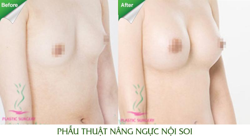 Cách massage ngực to