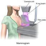 Tầm soát ung thư vú có những phương pháp nào?