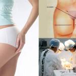 Phẫu thuật nâng mông nội soi có bị đau không?