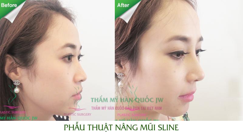 Nâng mũi đẹp ở Hà Nội