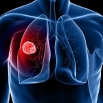 Ung thư phổi dễ gặp ở nghề gì