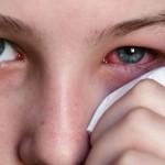 Ngừa bệnh đau mắt đỏ
