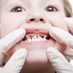 Sâu răng ở trẻ nhỏ – bố mẹ phải làm sao?