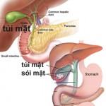 Dấu hiệu,nguyên nhân và cách điều trị bệnh sỏi mật