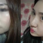 Sửa mũi hỏng bằng nâng mũi Hàn Quốc