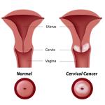 Kiến thức hay về bệnh ung thư cổ tử cung