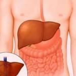 Bệnh viêm gan B cấp tính