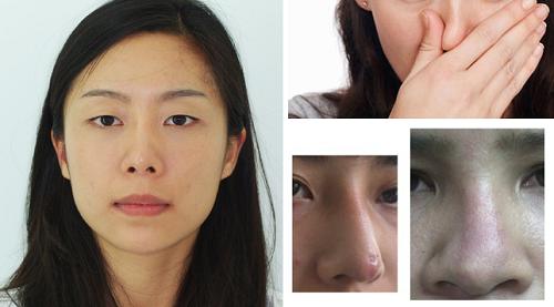 5 yếu tố tạo nên sự khác biệt của chuyên khoa thẩm mỹ mũi Kangnam2