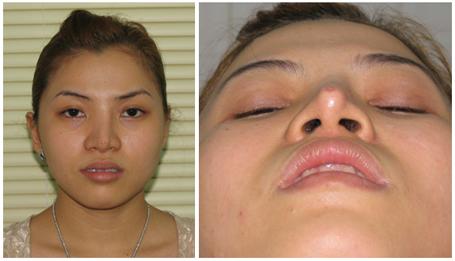 Phẫu thuật vẹo vách ngăn mũi có đau không? Có nguy hiểm không?