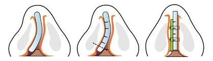 Mô hình phẫu thuật vẹo vách ngăn mũi tại Trung Tâm