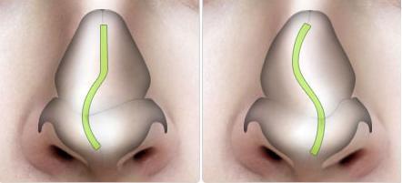 Nên chữa lệch vách ngăn mũi ở đâu để đảm bảo an toàn?